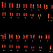 Heterochromatin variation and LINE-1 ...