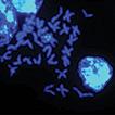 Analysis of chromosome karyotype and ...