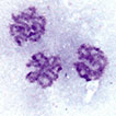 Karyotype and sex chromosome differentiation in two <i>Nalassus</i> species (Coleoptera, Tenebrionidae)